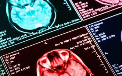 Vision Therapy in Treating Brain Injury